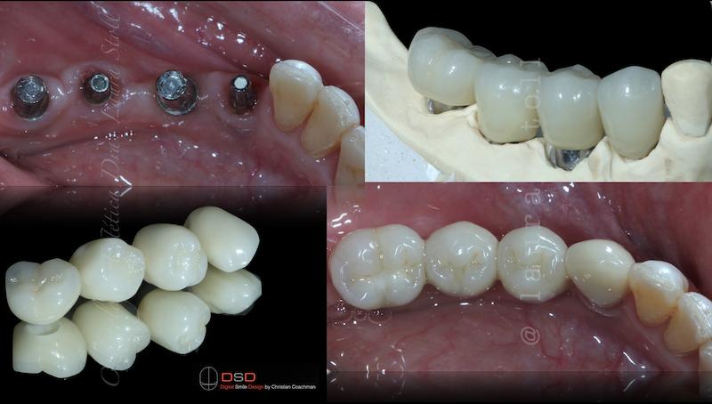 Implantes Múltiplos posteriores