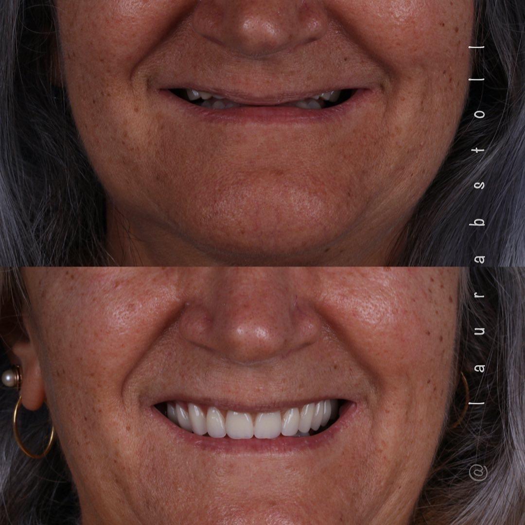 Reabilitação Oral superior