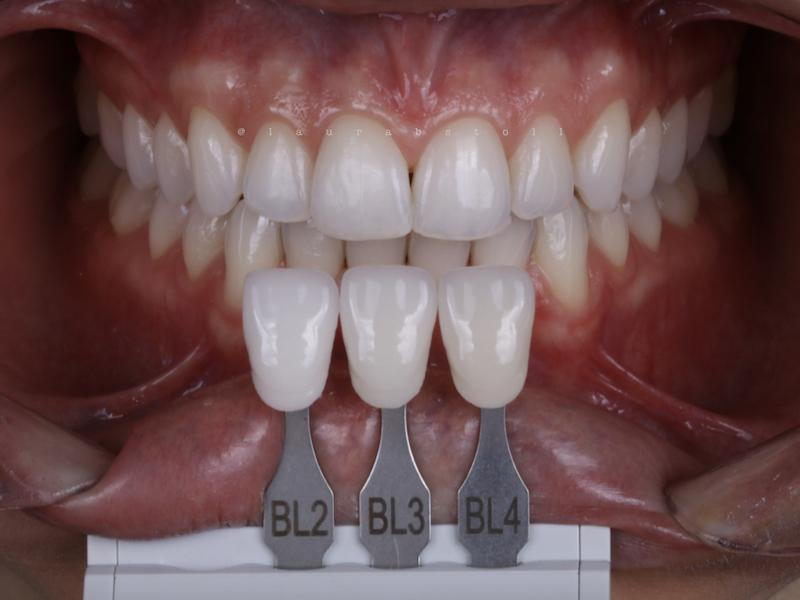Clareamento Dental 1 Final