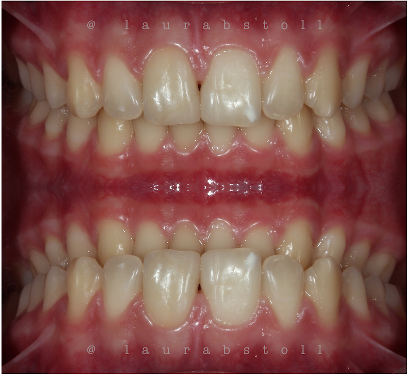 Clareamento Dental 5 Inicial