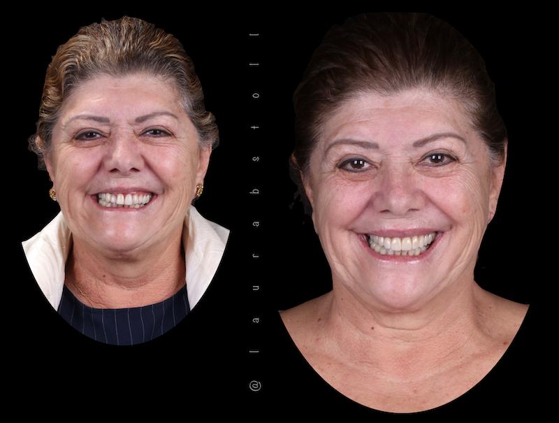 Reabilitação Oral inicial e final