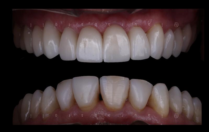 Reabilitação Oral com Cerâmicas Metal-Free