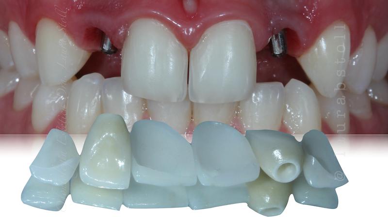 Implantes Anteriores inicial