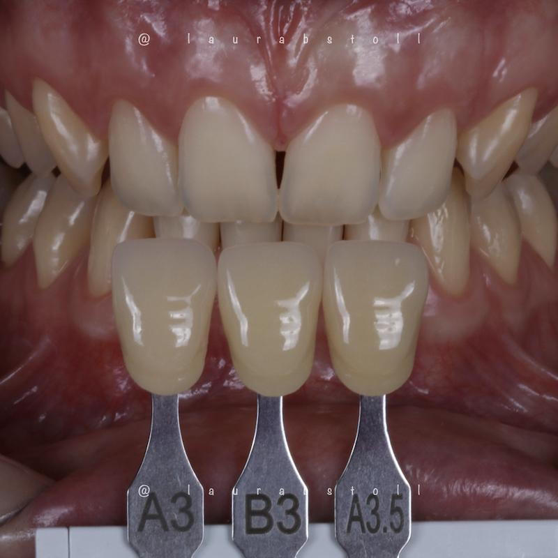 Clareamento Dental 3 Inicial