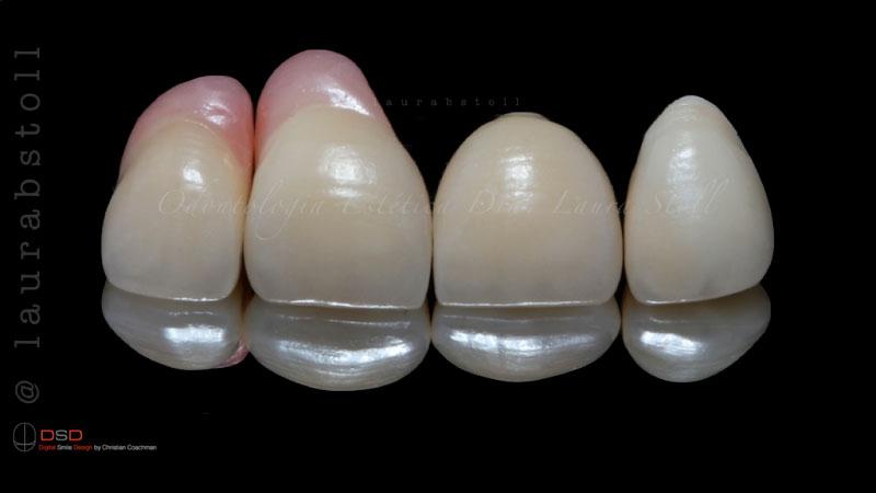 Cerâmicas Puras sobre Implantes