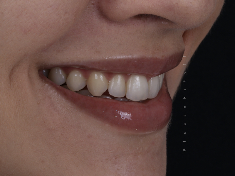 Clareamento Dental 2 Inicial