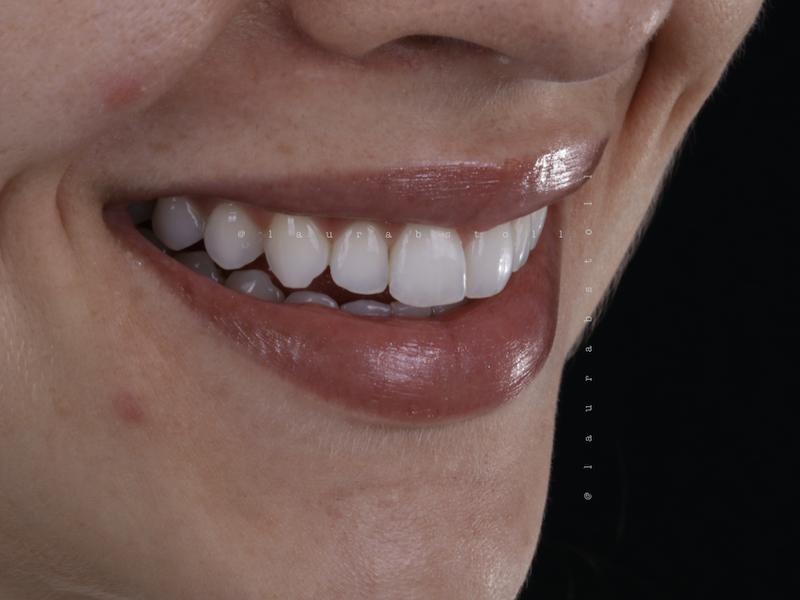 Clareamento Dental 2 Final