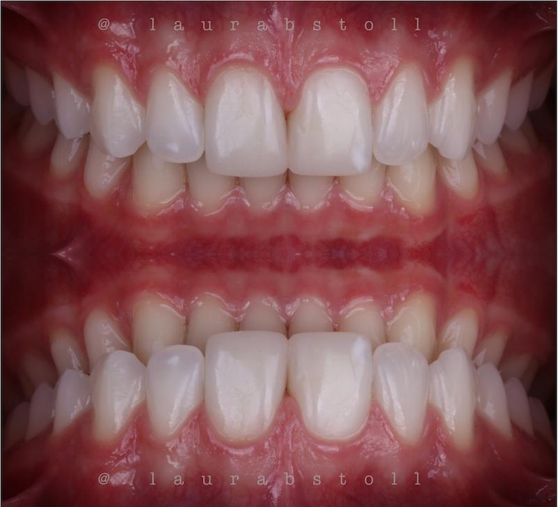 Clareamento Dental 5 Final