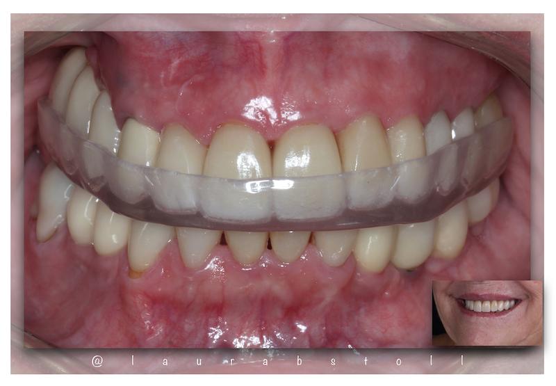 Reabilitação Oral e Placa para Bruxismo