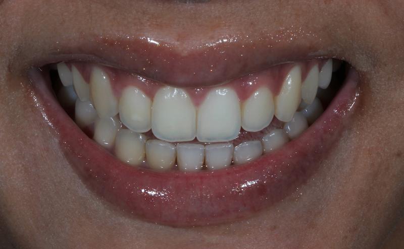 Clareamento Dental 4 Inicial