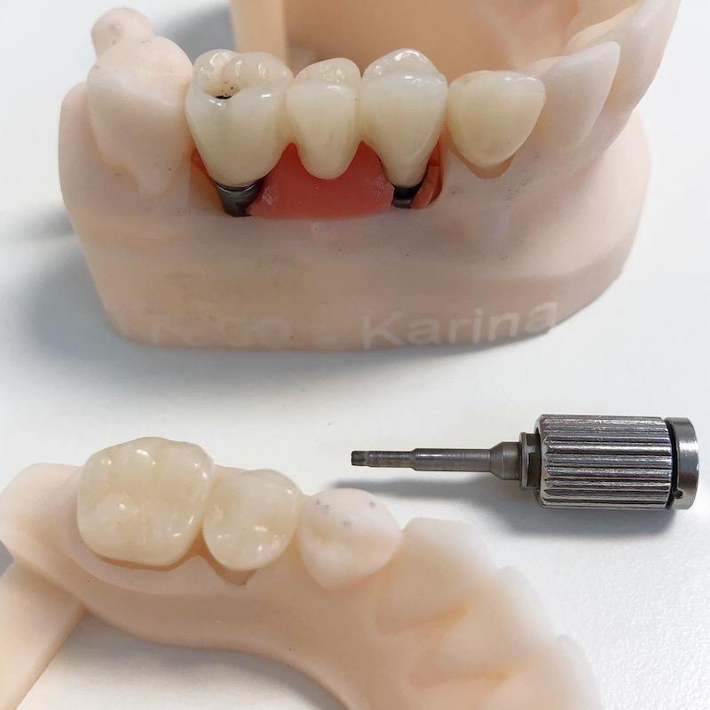 Próteses Fixas sobre Implantes final