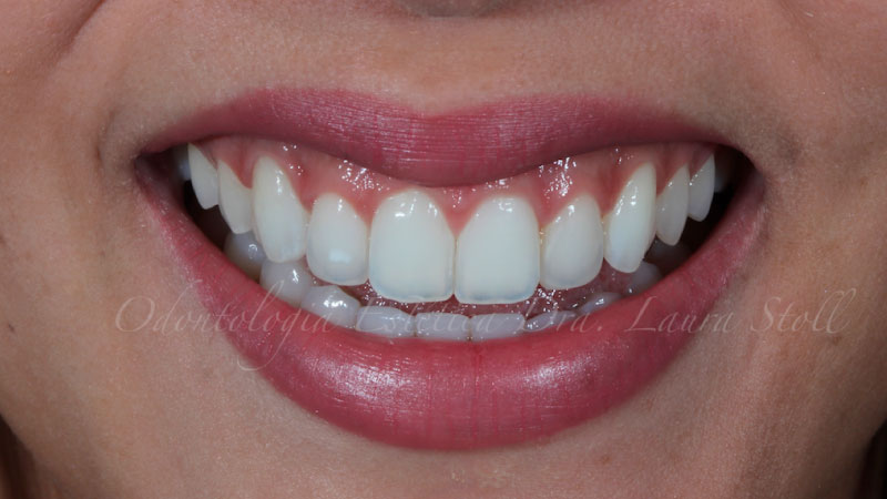 Clareamento Dental 4 Final