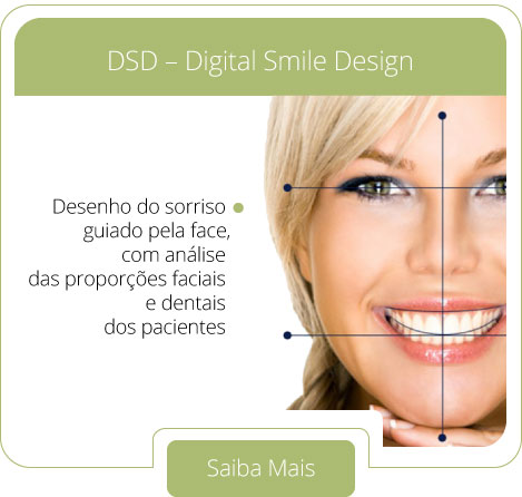 DSD - Digital Smile Design